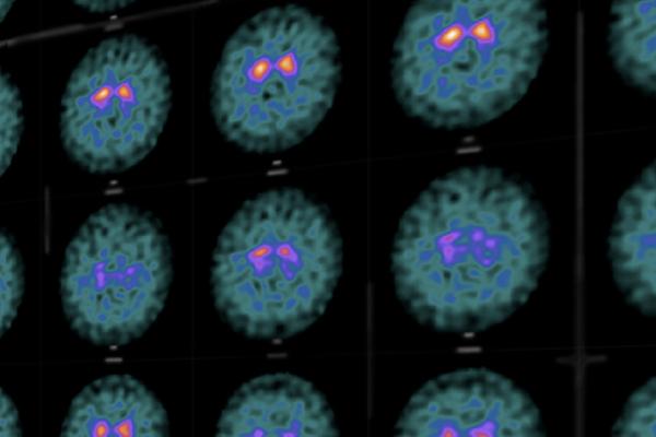 Likeminds brain imaging